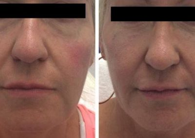 BEFORE AND AFTER FILLER 1