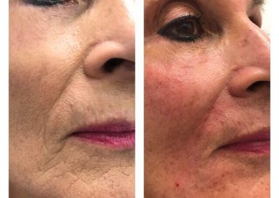 BEFORE AND AFTER FILLER 1.