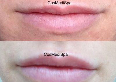 BEFORE AND AFTER LIPS S