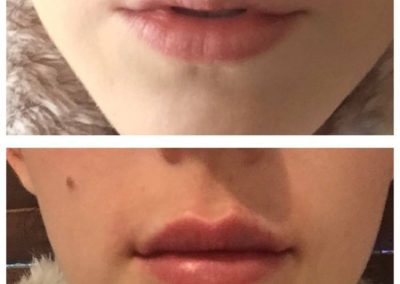 BEFORE AND IMMEDATLY AFTER LIPS
