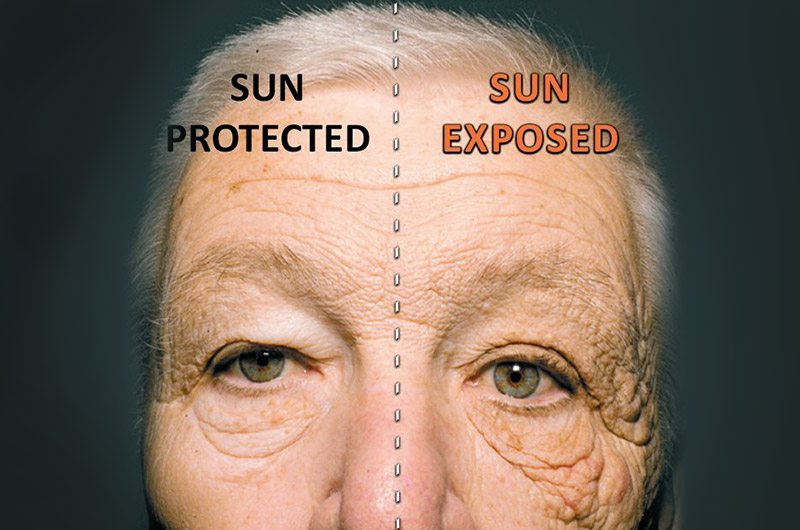 A timely reminder of why sun protection is essential!