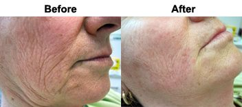 accordion-lines-dermal-filler-treamtent-before-after
