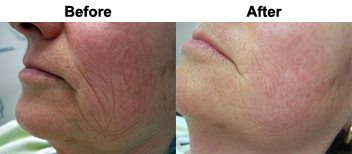accordion-lines-dermal-fillers-before-after