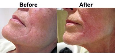 dermal-filler-before-after-oxenford-skin-clinic