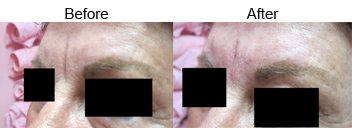 dermal-filler-frown-line-treatment-before-after