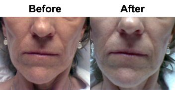dermal-fillers-cheeks-lower-before-after