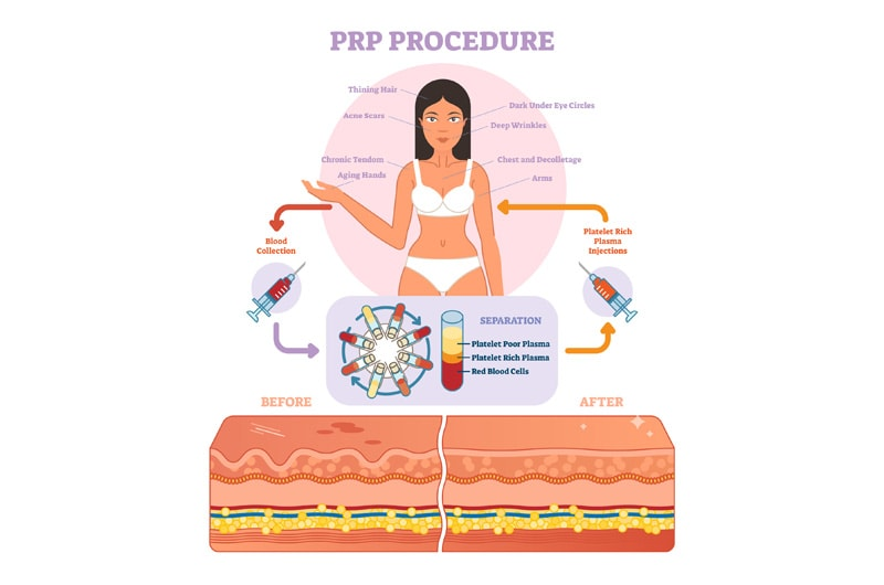 Natural anti ageing treatments with PRP