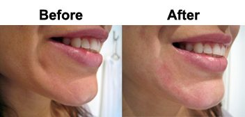 dimple-treatment-dermal-fillers-skin-clinic-gold-coast