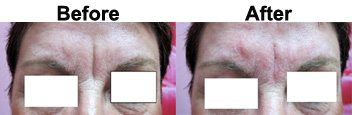 frown-line-treatment-dermal-filler-before-after