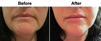 lip-volumnising-dermal-fillers-before-after
