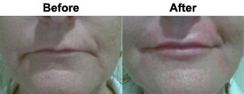marionette-lines-treatment-dermal-fillers-before-after