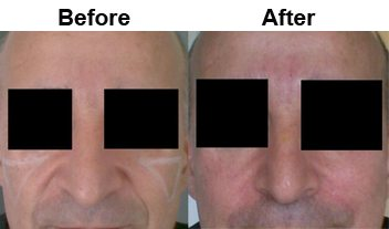 mens-nasolabial-dermal-filler-before-after