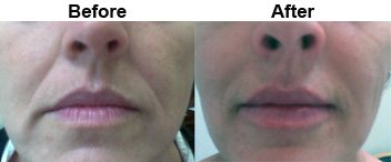 nasolabial-fold-treatments-dermal-fillers-before-after