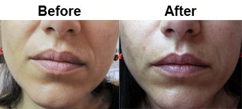 nasolabial-treatment-dermal-filler-before-after