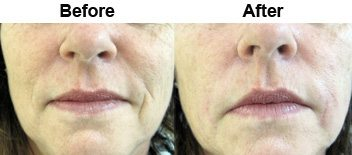 smile-lines-dermal-fillers-before-after