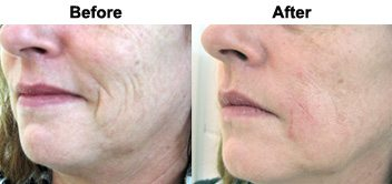 smile-lines-treatment-dermal-filler-before-after