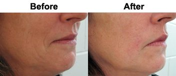 smile-lines-treatment-dermal-fillers-before-after
