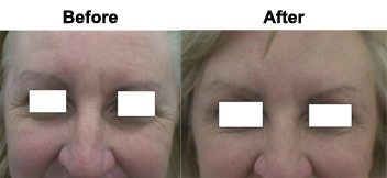treatment-frown-lines-skin-clinic-gold-coast